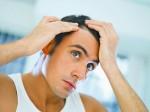 Geheimratsecken (Geheimratsecken – Was tun gegen den Haarausfall?)
