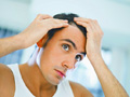 Geheimratsecken – Was tun gegen den Haarausfall?