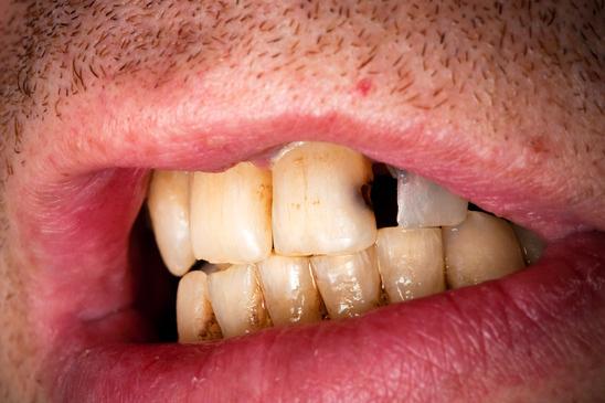 Karies sorgt für Zahnschmerzen.